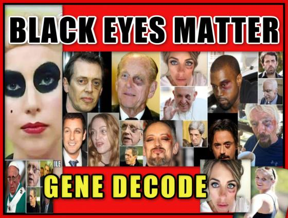 SpirituallyRAW Ep 385 GENE DECODE on BLACK EYES MATTER! PANDA EYES Another Satanic Child Abuse Mystery Uncovered and Hollywood Gender Inversions